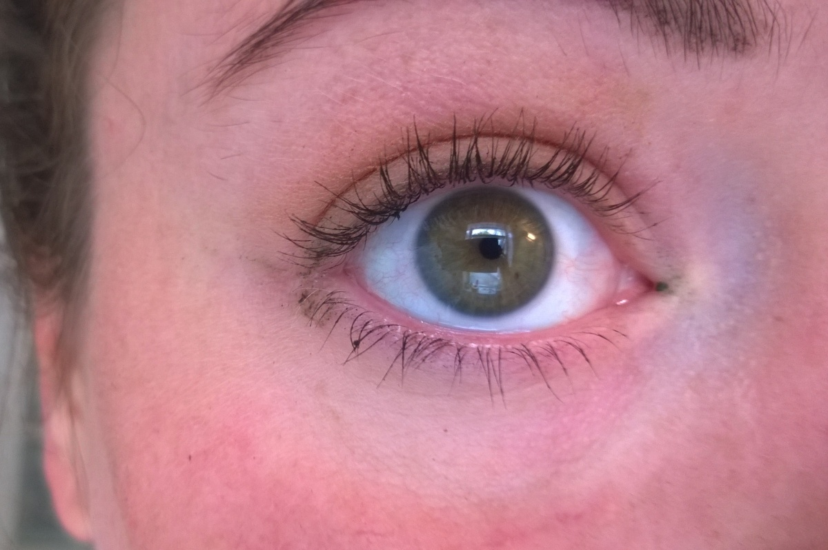 how to fix a lazy eye naturally